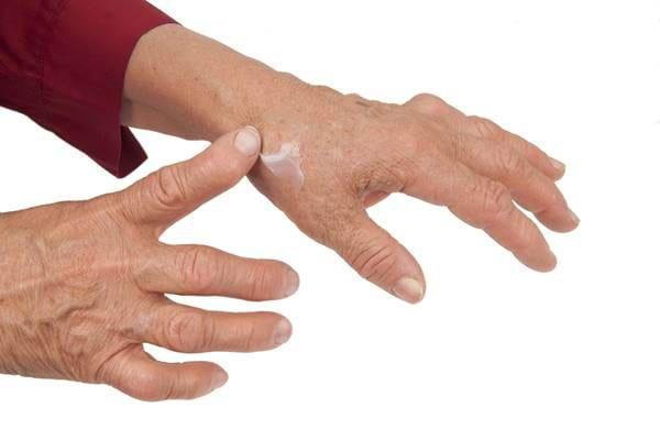 tratament artroza degete mana diagnostic condilomat