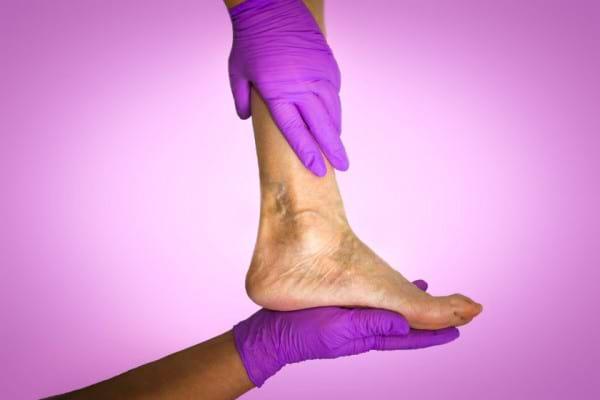 Dermatita de staza: complicatii, factori de risc, diagnostic