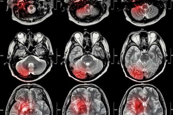 Diagnosticul imagistic la pacientii cu AVC