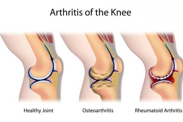 ce este artrita si artroza cum să tratezi o articulație de mestecat