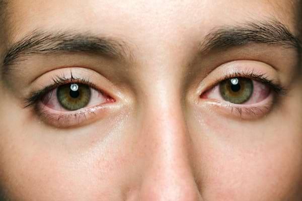 Sclerita la pacientul cu colita ulcerativa - ce impact are boala intestinala la nivel ocular