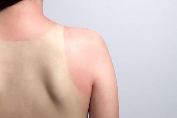 Efectele iremediabile pe care le are arsura solara asupra pielii