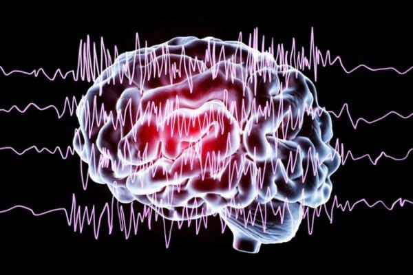 Scleroza multipla: Tipuri, Simptome, Cauze Epilepsie pierderea completă a vederii