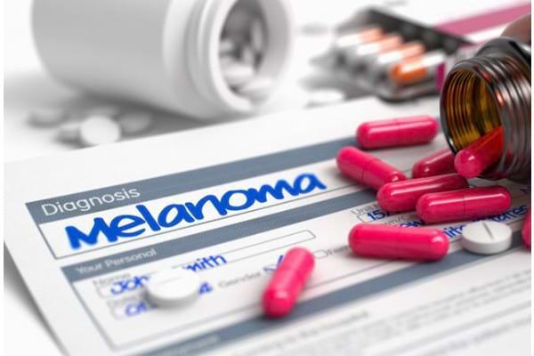 Factori de risc în melanom