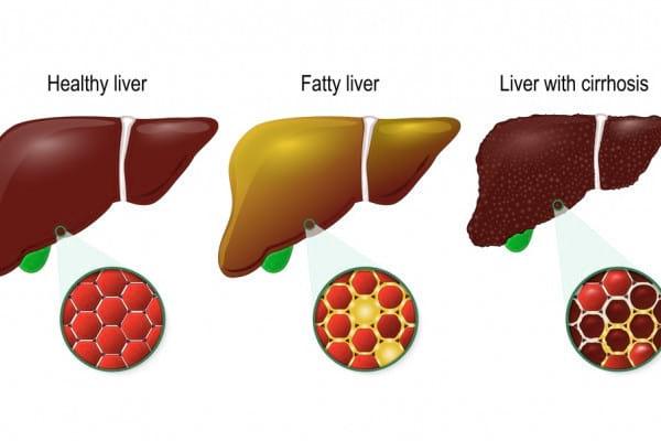 Evoluția cirozei: cele 4 stadii ale bolii