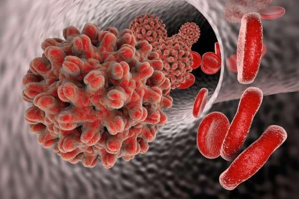 Hepatita autoimuna | joomlafanclub.hu