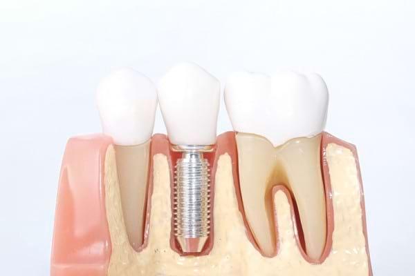 Ce avantaje are implantul dentar realizat în totalitate din ceramică