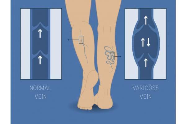 Insuficienta venoasa la barbati: factori de risc si simptome