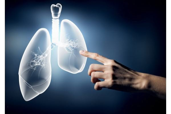 Inteligenta artificiala, folosita pentru diagnosticarea cancerului pulmonar