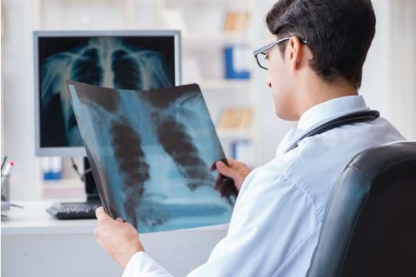 Investigatii pentru depistarea cancerului pulmonar