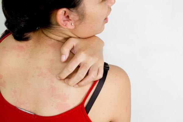 Expunerea la soare iti provoaca iritatii? Ar putea fi vorba despre lupus