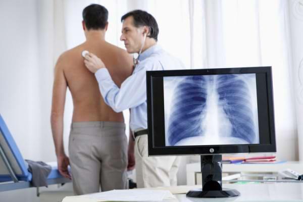 Istoricul de boli respiratorii - indicator pentru cancerul pulmonar?