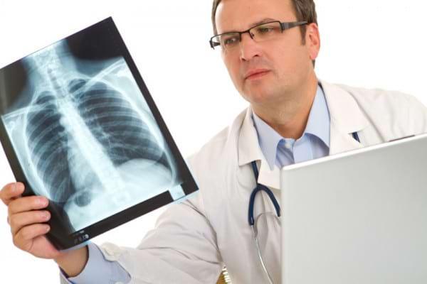 Lucruri esentiale despre cancerul pulmonar