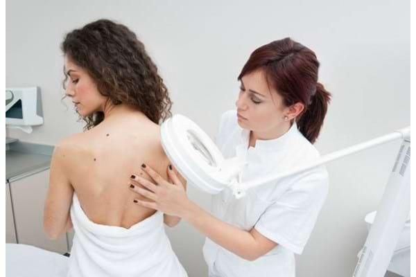 5 lucruri esentiale pe care trebuie sa le stii despre melanom