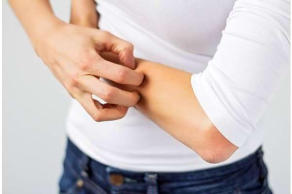 Mâncărimile pielii: cauze și tratament