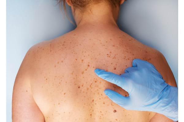 Melanomul malign rezecabil - un nou standard terapeutic?