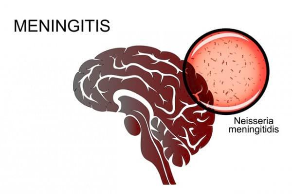 Meningita: cauze, simptome și tratament