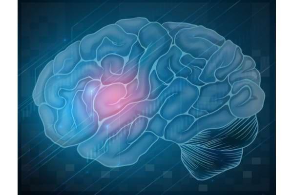 5 mituri despre accidentul vascular cerebral