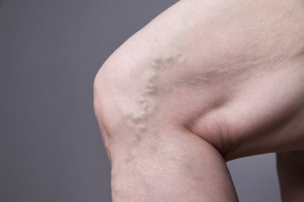 8 mituri despre varice
