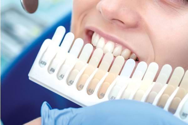 Modificările de culoare ale dinților