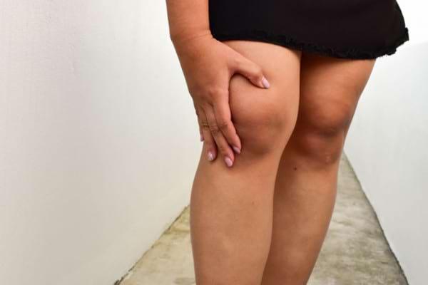 Cum combati durerile de picioare cauzate de kilogramele in plus