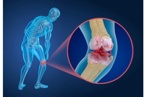 artroza gleznei tratament de 1 2 grade