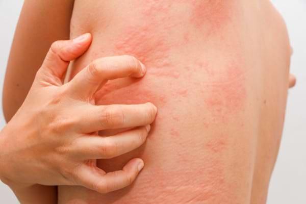 8 remedii naturiste pentru urticarie