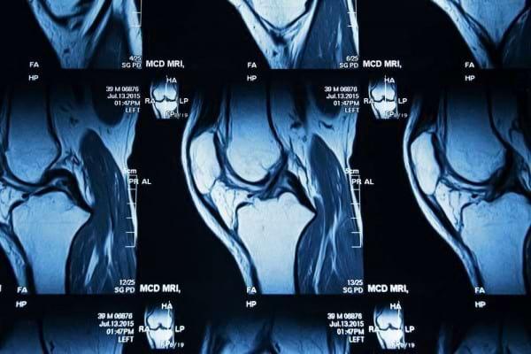 Importanta modificarilor RMN in stabilirea indicatiei de protezare a genunchiului