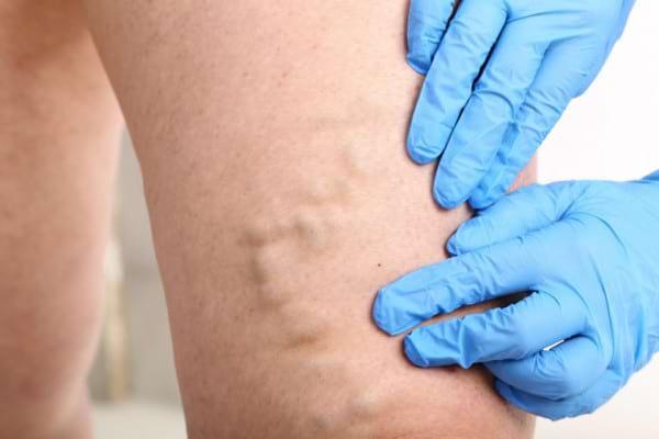 Simptomele insuficientei venoase cronice
