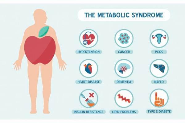 Cu ce este asociat sindromul metabolic si de ce sunt importante valorile lipoproteinelor