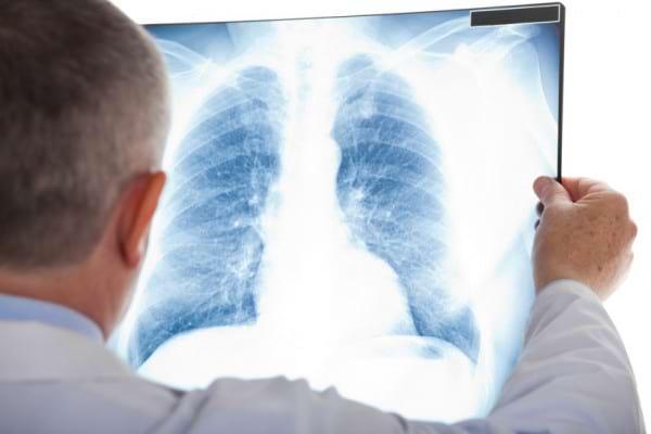 Sportul injumatateste riscul de complicatii dupa operatia de cancer pulmonar