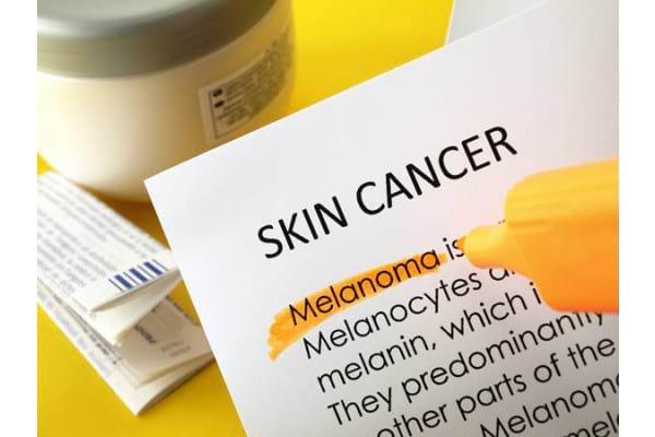 Tratamentul cancerului de piele