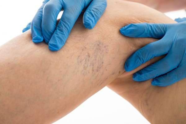 Ligaturarea varicelor: scopul, riscurile si beneficiile procedurii