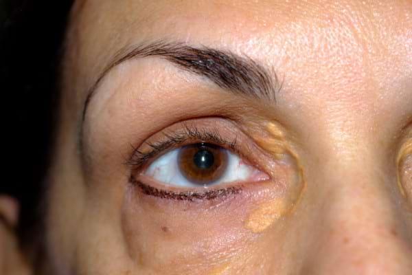 Depozitele de colesterol in zona ochilor (xantelasme): cauze, simptome, tratament