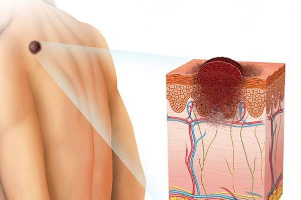 Pe ce zone ale pielii se poate dezvolta melanomul