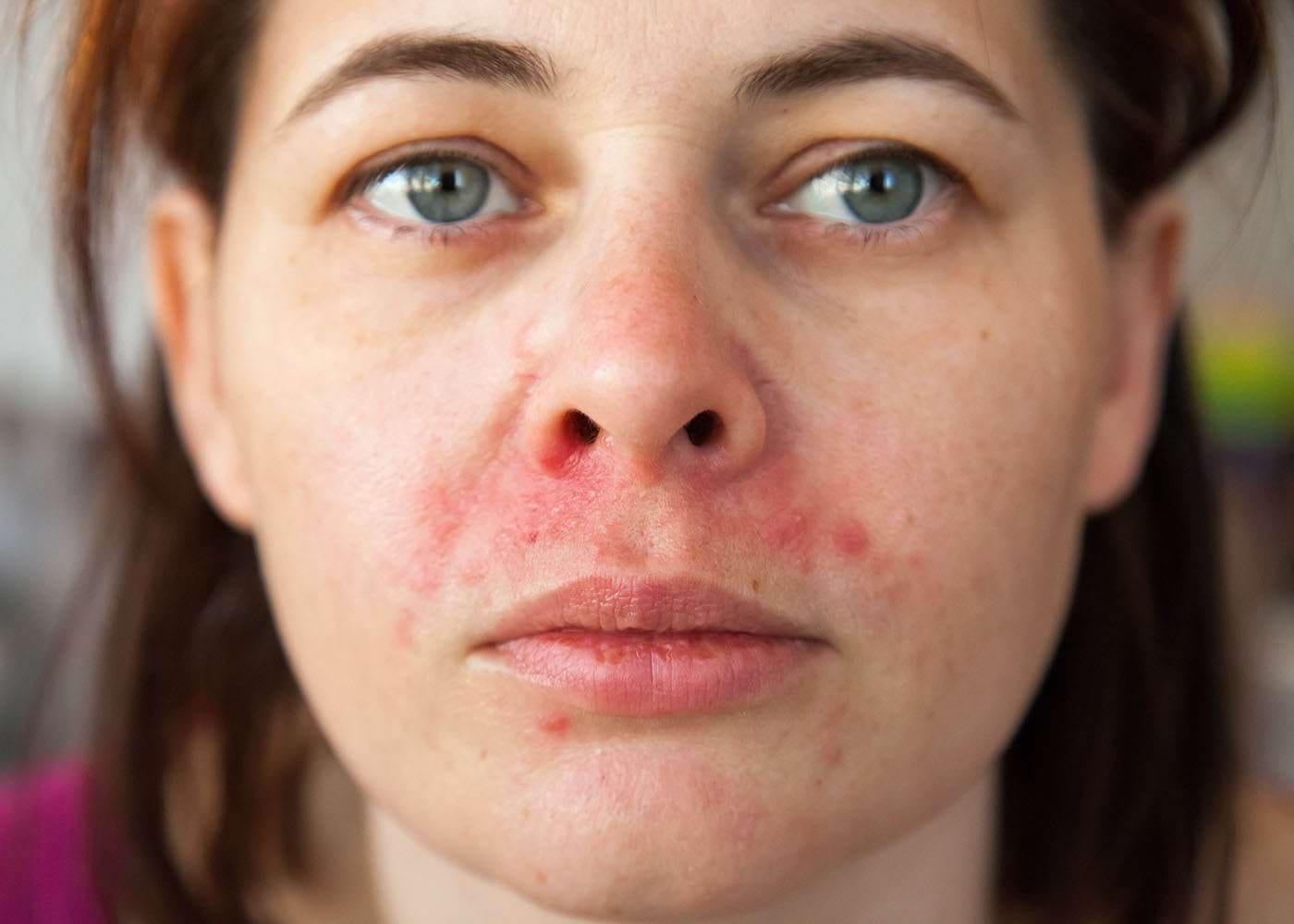 Cum îți îngrijești pielea atopică în acest sezon