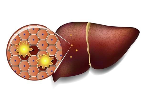 Noutăți în ficat gras