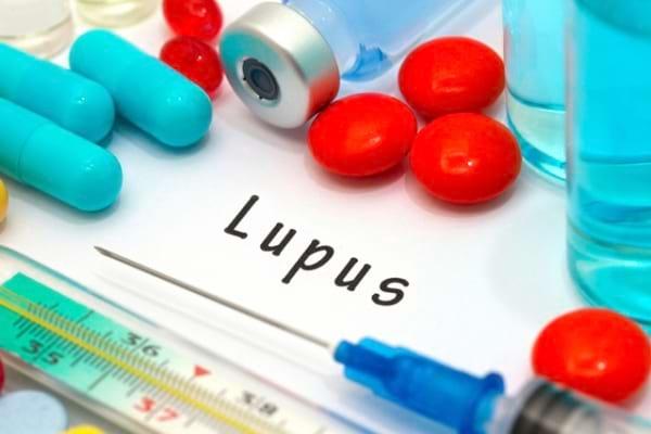 Despre Lupus