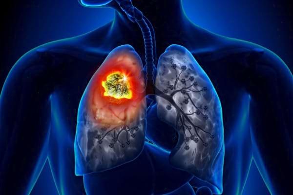 Noutăți în cancerul pulmonar