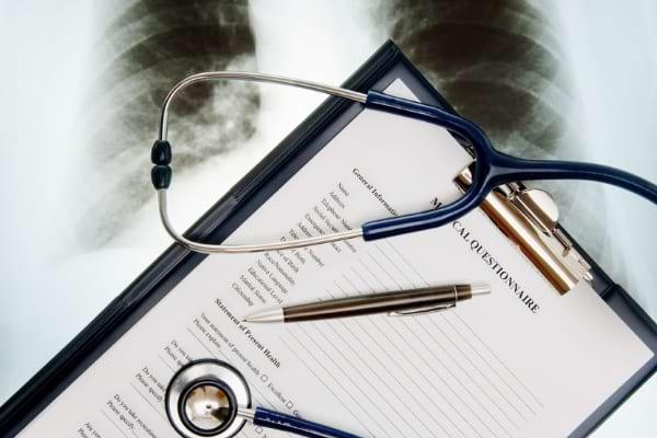 Tratament și opțiuni în cancerul pulmonar