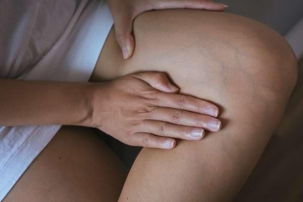 Simptome și diagnostic în varice