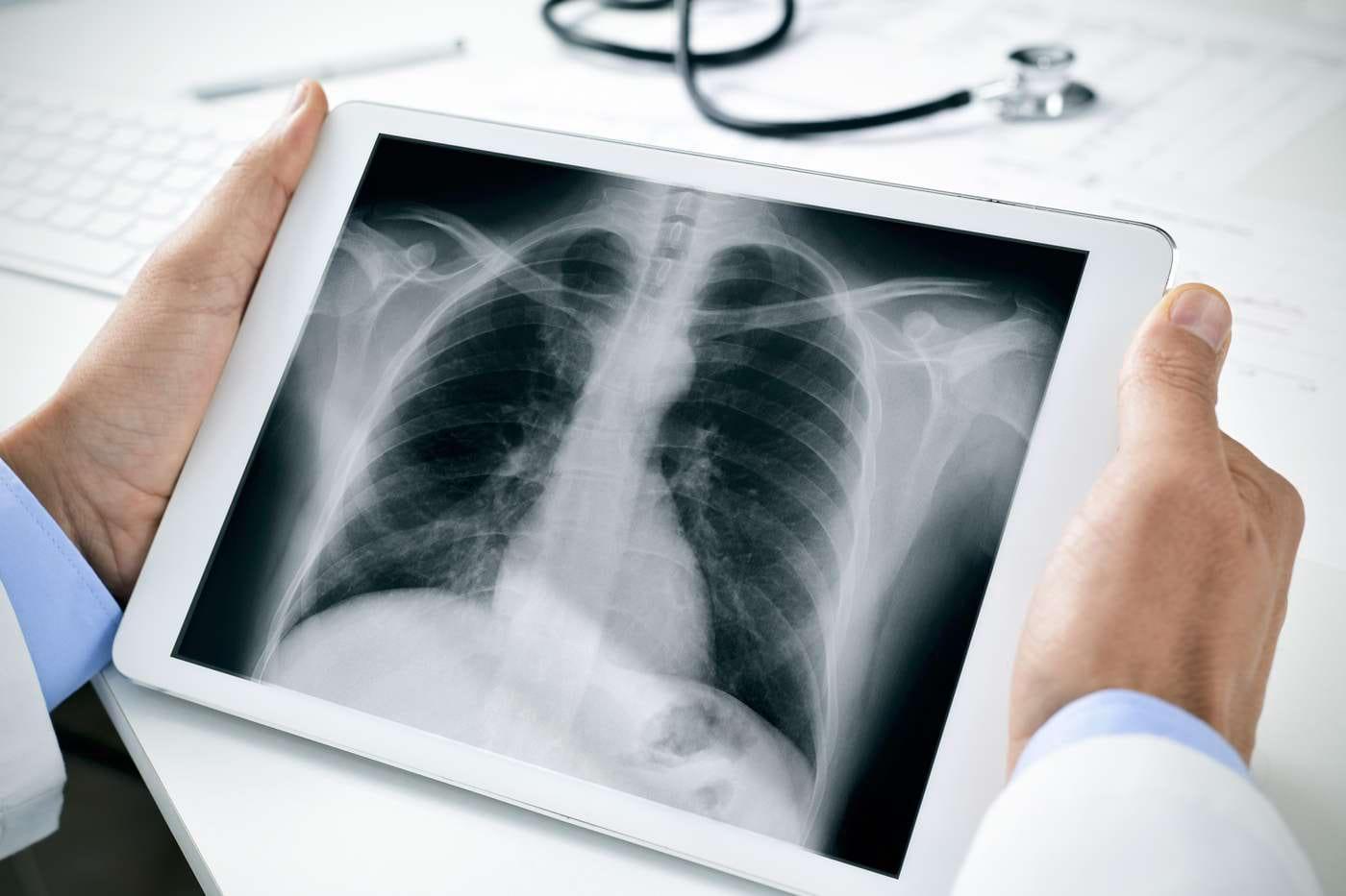 Leziunile pulmonare cauzate de țigările electronice seamănă cu arsurile chimice [studiu]