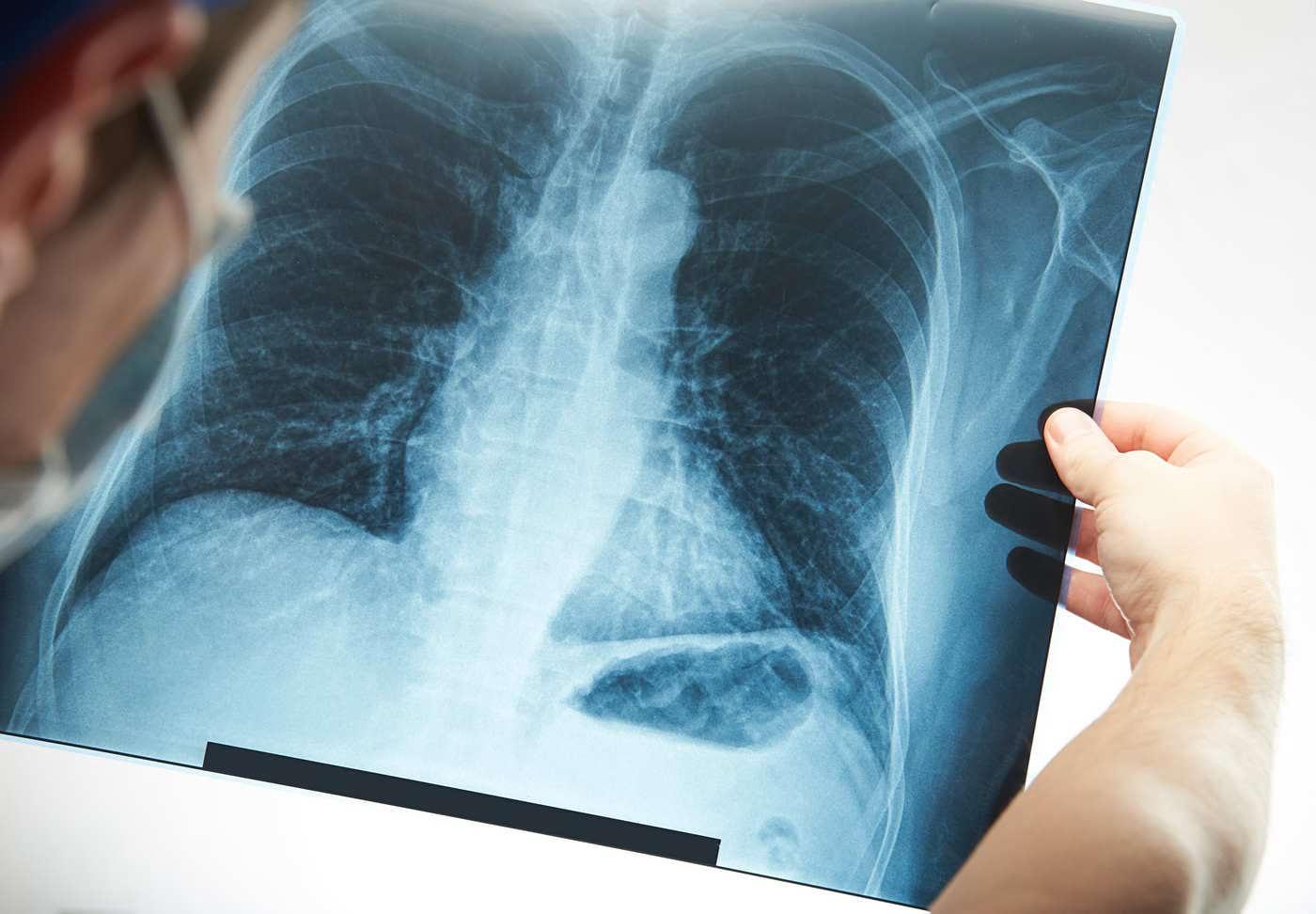 Monoimunoterapia sau terapia combinată în cancerul pulmonar fără celule mici