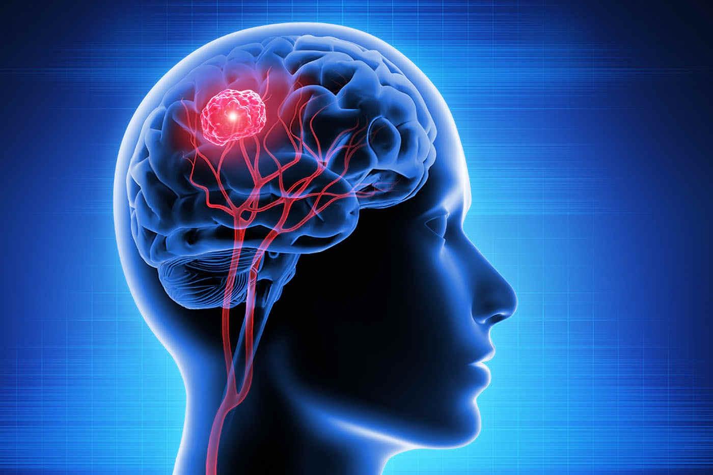 Prevenția apariției metastazelor cerebrale în cancerul mamar - cât de aproape suntem?