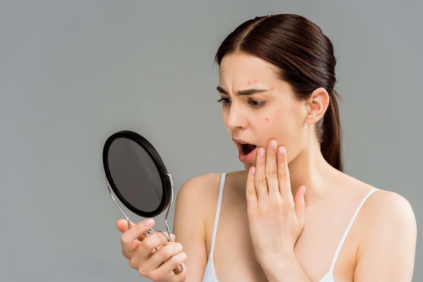 Acnee, lupus, vitiligo, psoriazis: care sunt efectele soarelui asupra acestor afecțiuni?