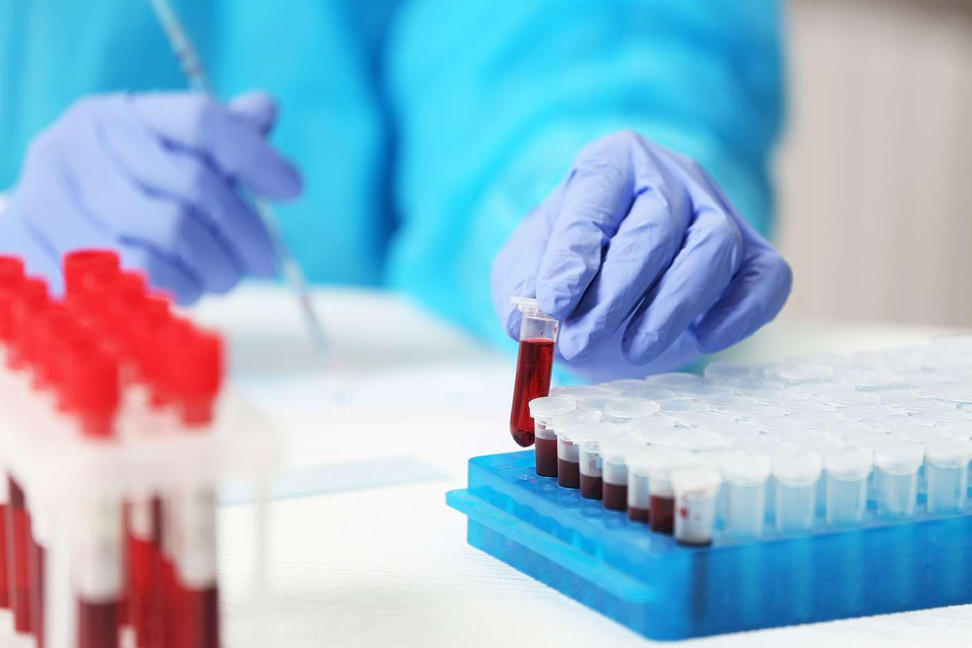 Cancerul, depistat cu 4 ani înainte de apariția simptomelor? [studiu]