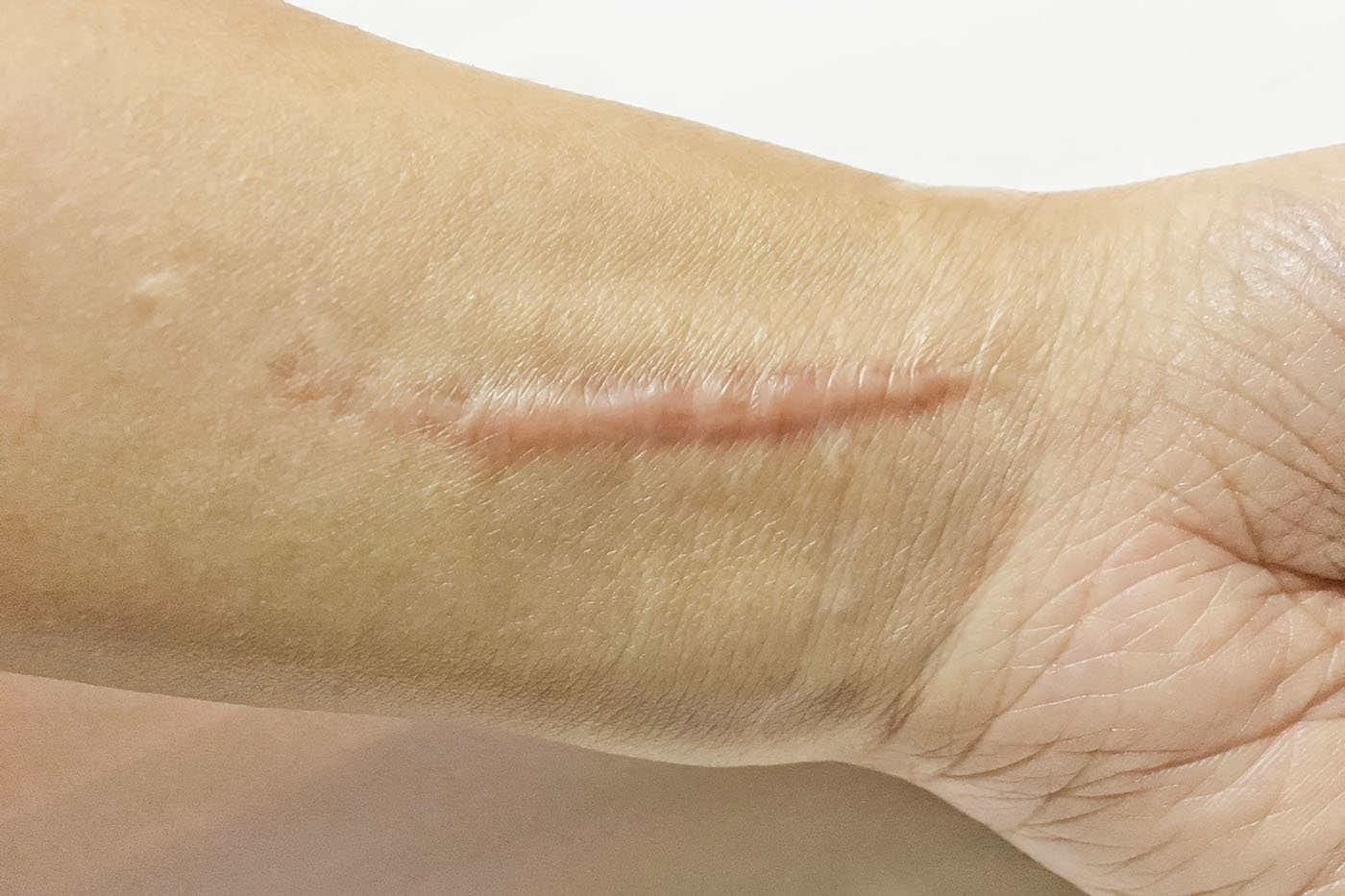 Cicatrici - tipuri, tratament și prevenție