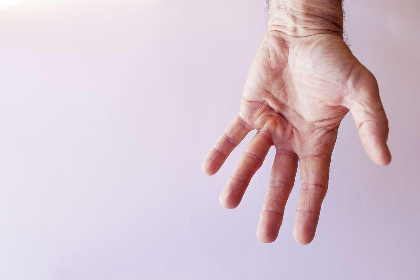 Unele medicamente pentru artrită, utile în boala Dupuytren [studiu]
