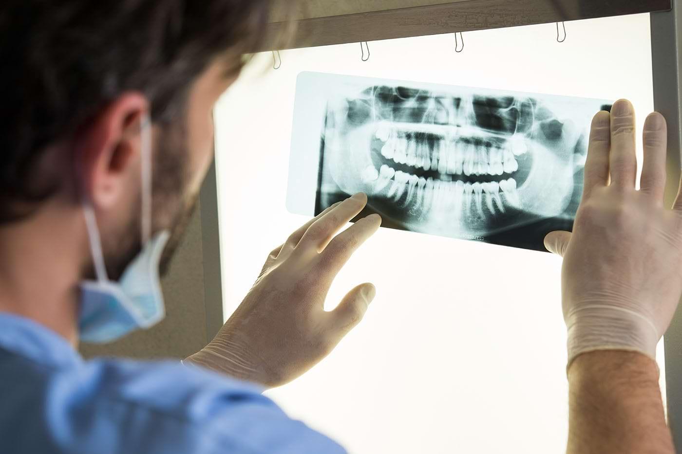 Radiografia dentară: ce rol are, câte tipuri există și ce efecte are asupra sănătății