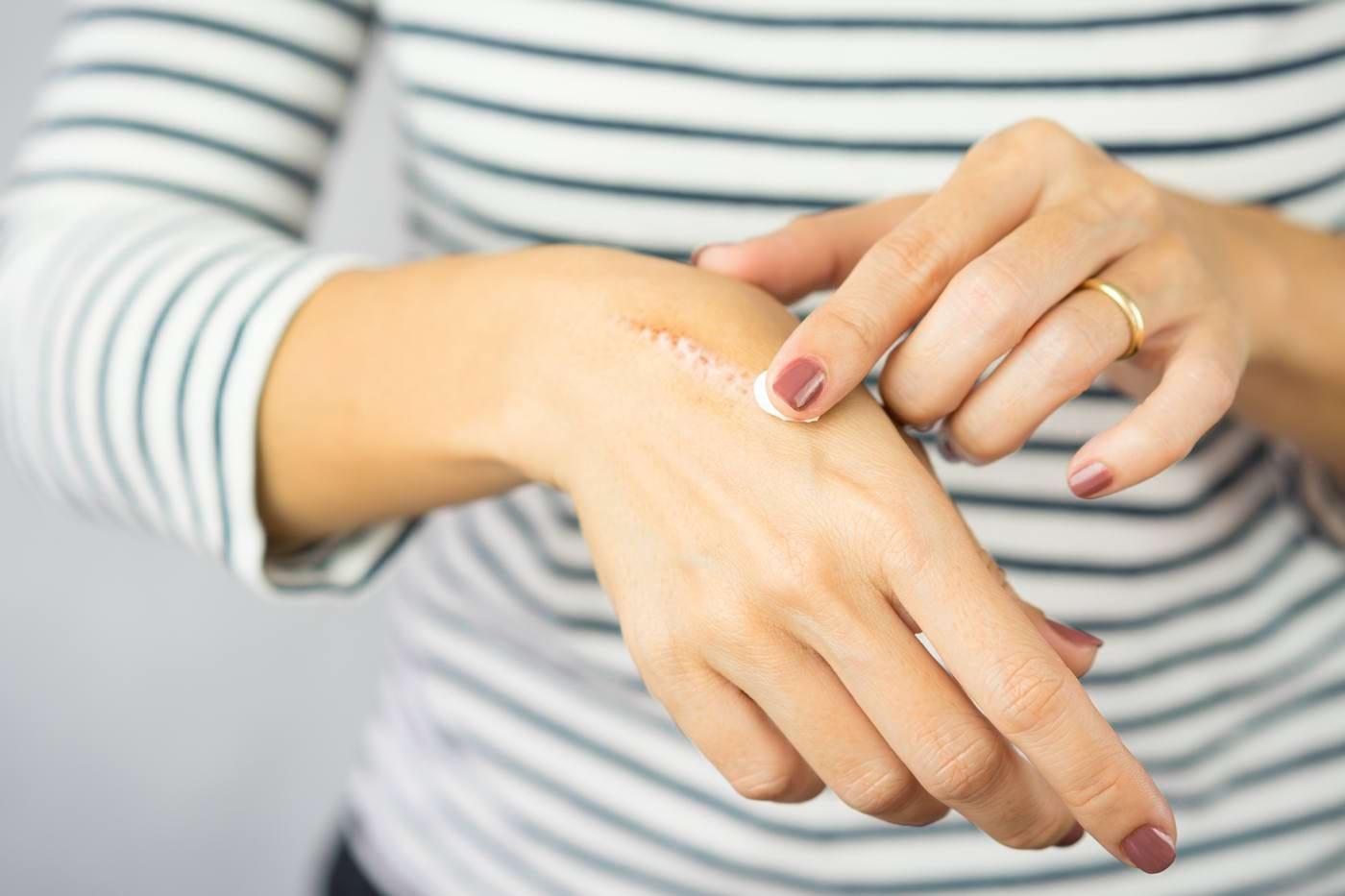 Soluții eficiente pentru tratarea cicatricilor